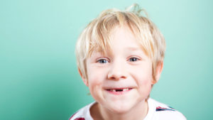 baby teeth cavities child with missing teeth dental advice