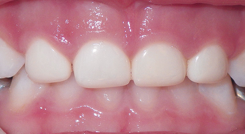 picture of child with all white zirconia pediatric crowns